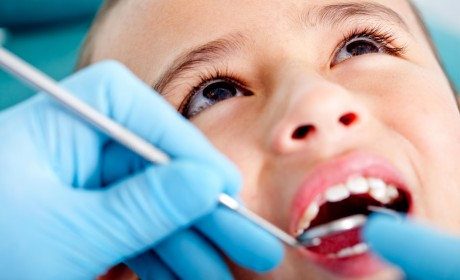 Treating Cavities on Kids' Permanent Teeth